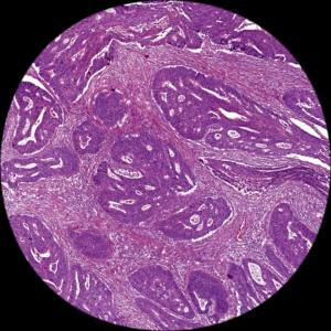 Stroma-low tumour